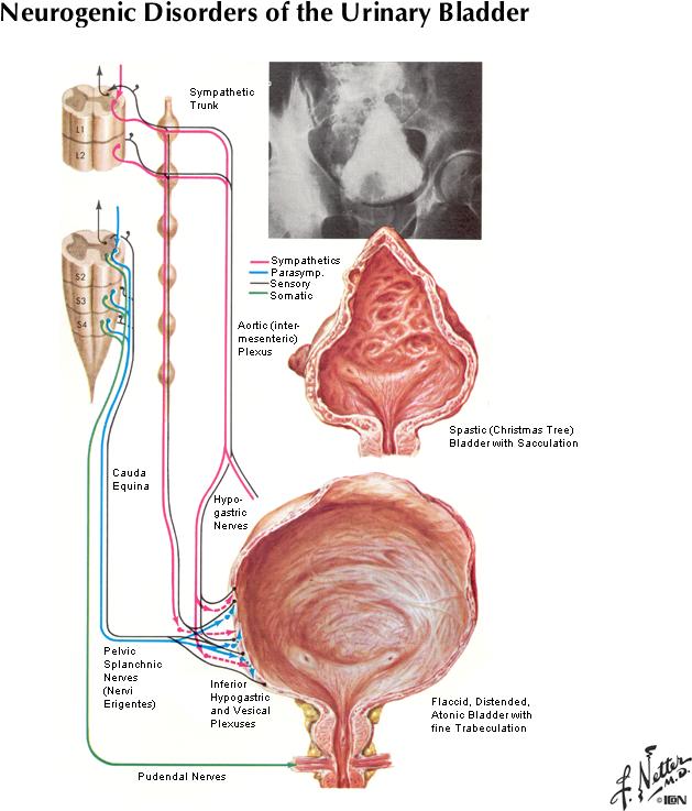 neurogenic