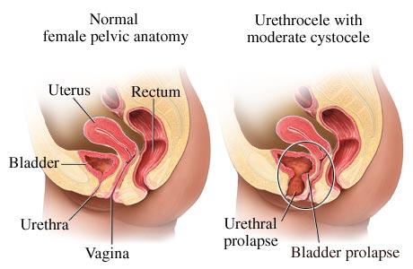 Urethrocele