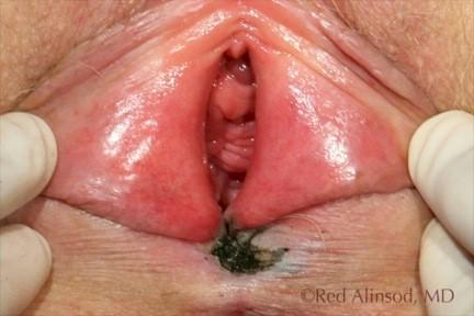 javma 2004 vaginal polyps