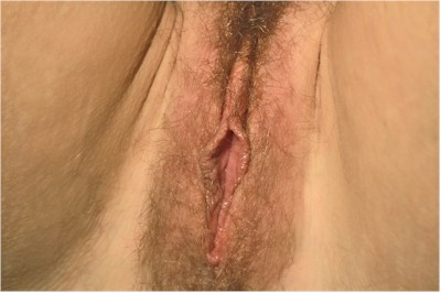 vaginoplasty case 9
