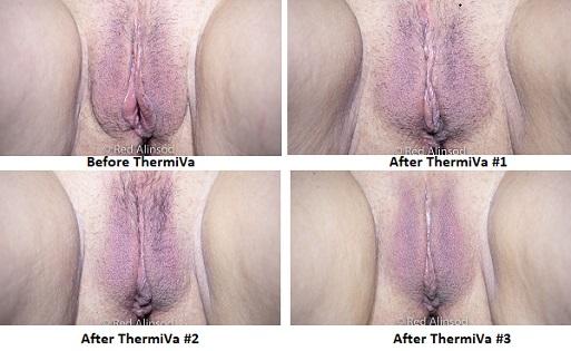 thermiva case study