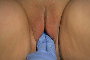 Sizing - After Vagnoplasty